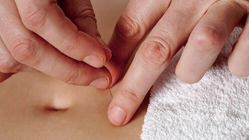 1, 3, 5 ó 10 sesiones de acupuntura + auriculoterapia para adelgazar