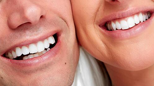 Limpieza dental + Revisión + Diagnóstico por 9€