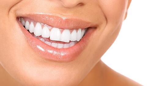 Cuida tu boca con una limpieza dental y revisión con opción a blanqueamiento LED