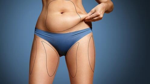 CYCLONE: Técnologia HIFU liposucción sin cirugía ¡Único centro en Cantabria!
