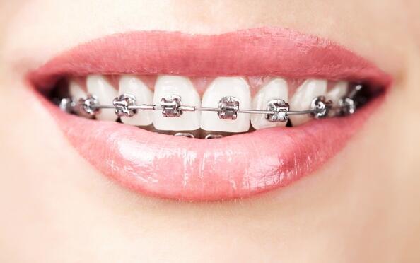 Ortodoncia con brackets y revisiones