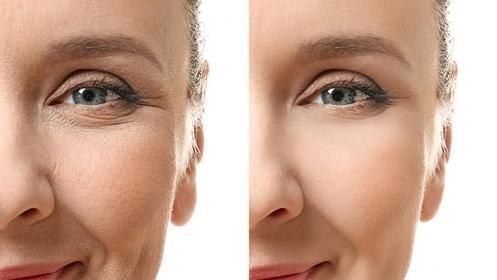 Tratamiento facial antiarrugas reafirmante